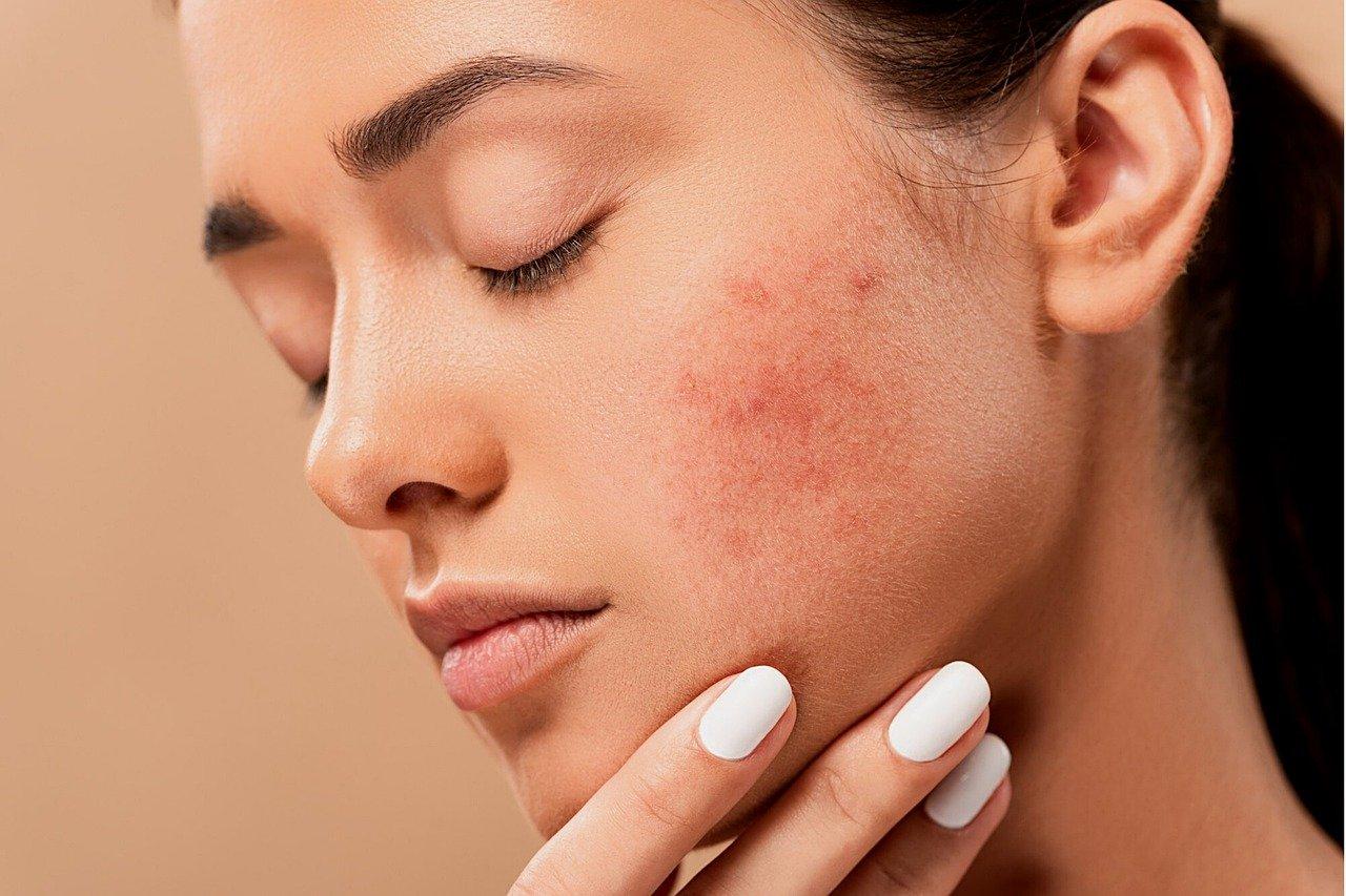 Le soin de la peau acnéique