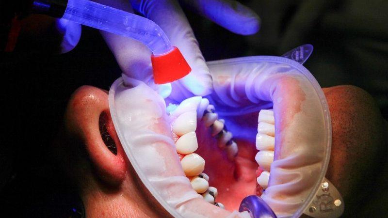 Les agences de tourisme dentaire : pour un voyage dentaire en Hongrie bien organisé